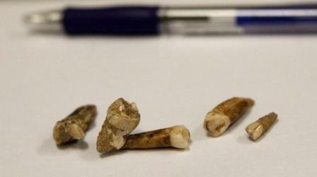 Люди пломбирови зубы уже 6,5 тысяч лет назад