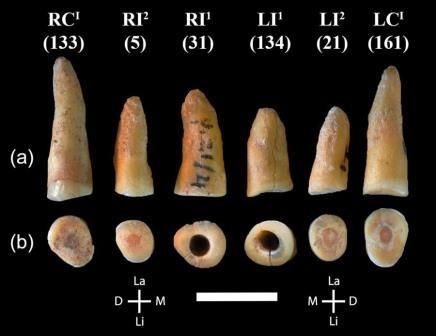 Найдены древние зубы со следами лечения кариеса