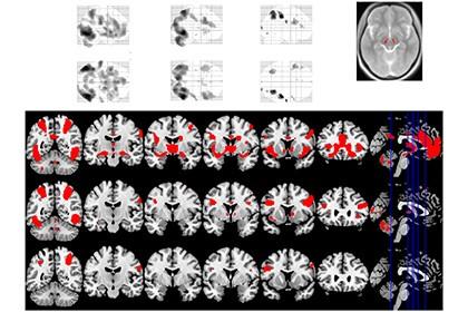 Наркомания и сексуальная зависимость заставляют мозг работать одинаково