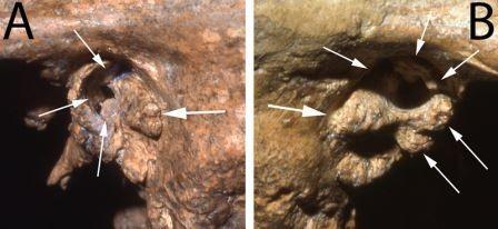 Неандертальцы заботились о немощных собратьях