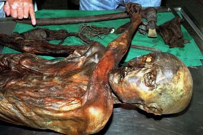Тирольский ледяной человек был предрасположен к атеросклерозу