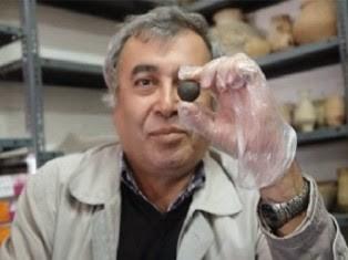 В иране нашли первый в мире искусственный глаз