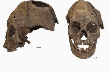 В тюменской области археологи нашли древний череп ребенка со следами хирургической операции